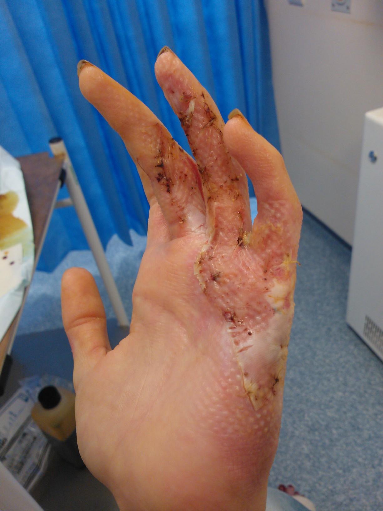 Dissolvable Stitches Infection